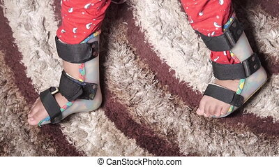 Child cerebral palsy disability, legs orthosis