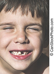 Child shows missing teeth