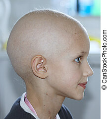 child with cancer - profile of a caucasian child showing...