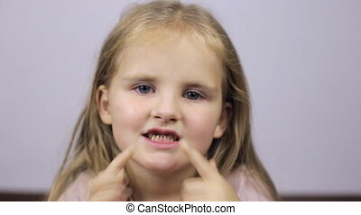 Child without front teeth. Close-up