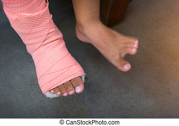 Children wearing a splint of leg broken from injury