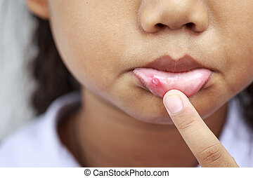 Children with aphtha on lip - Close up Children with aphtha...