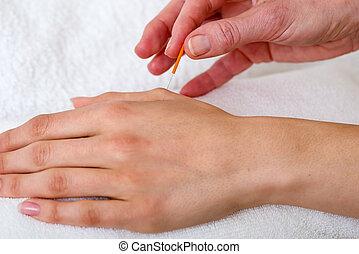 Chiropractor applying acupuncture needles.