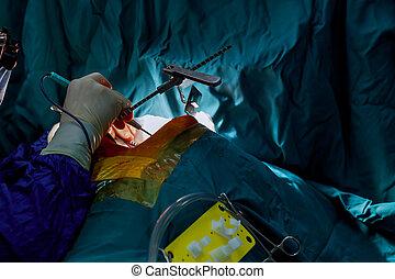 chirurg, knijpt, de, bloed, circulatie, gedurende, de, open hartchirurgie