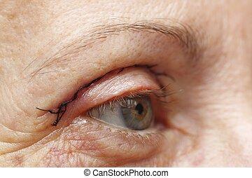 chirurgia, occhio, plastica