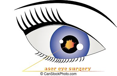 chirurgie laser, oeil, logo