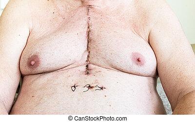 chirurgisch, litteken, van, hart, chirurgie, van, coronaire slagader, ziekte