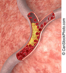 Cholesterol plaque in artery. Medical concept