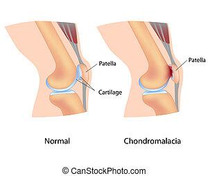 Chondromalacia, eps8 - Chondromalacia patellae or soft...