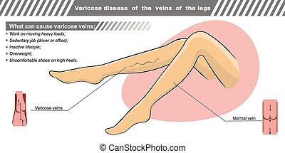 choroba, varicose, ilustracja, wektor, legs., słojowanie