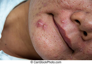 Chronic acne skin on woman surface