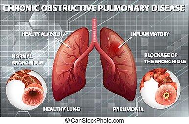 Chronic obstructive pulmonary disease illustration