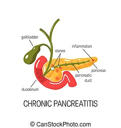 Chronic pancreatitis concept. Medical vector illustration of inflamed pancreas in cross section, duodenum and gallbladder