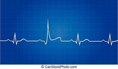 cianografia, attacco cuore