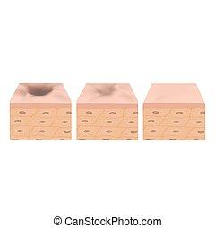 cicatrice, acne., acné, atrophic, vecteur, scars., illustration, peau, structure, treatment., anatomique, fond, isolé