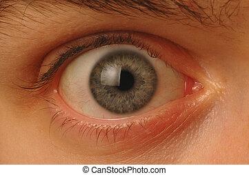 cicatrizarse, de, ancho-wide-eyed, globo ocular