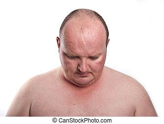 cicatrizarse, retrato, captura, de, sobrepeso, macho