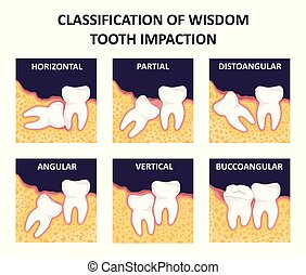 Classification of wisdom tooth impaction