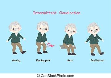 claudication, homem, intermitente