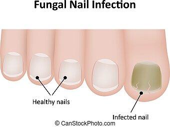 clavo, rotulado, fungal, infección