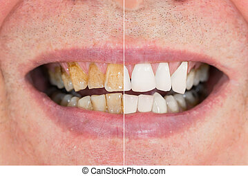 Man Teeth Before And After Whitening - Close-up Detail Of...