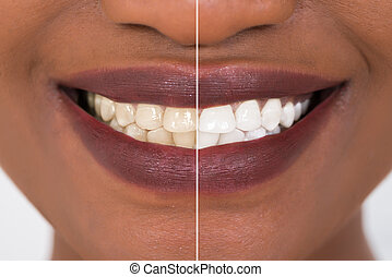 Woman Teeth Before And After Whitening - Close-up Detail Of...