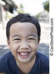 close up face of asian boy with funny milk tooth