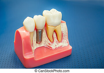 Close up Human tooth implant, crown model. Modern stomatology concept. Selective focus. Space for text