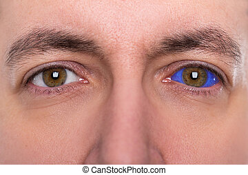 close up, man with a blue eyeball tattoo