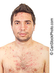 Close up man with chickenpox - Close up of man face with...