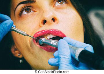 close-up, medisch, tandarts, procedure, van, teeth, pools