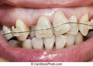 Close-up mouth of crooked teeth with braces.