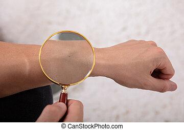 Man Examining Mole On His Hand