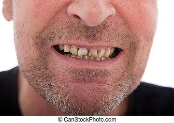 Close-up of a man's mouth showing teeth that need dental...