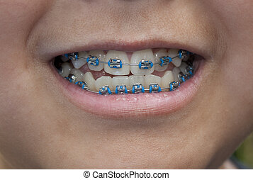 Close-up of a young boy with blue braces