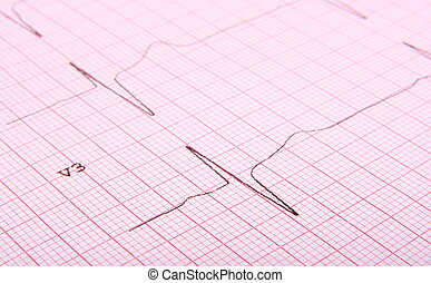 close-up of ecg graph, can use as medical background