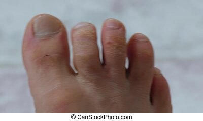 close-up of human foot and toes, male human toes, having fungal disease