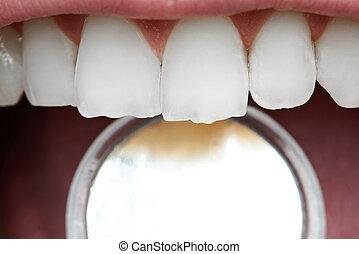 Close-up of human  teeth