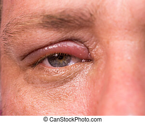 Close up of infected eye - Close up of eye infection with...