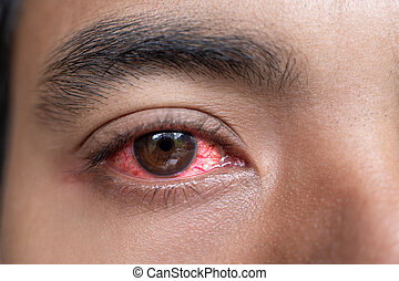 close up of man red irritated eyes after get a dust