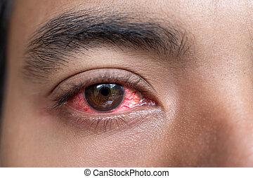 close up of man red irritated eyes