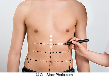 Person Hands Drawing Correction Lines On Abdomen - Close-up...