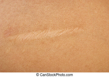 close up of scar on skin