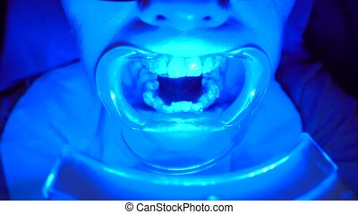 Close-up of special equipment whitening the teeth of a young...