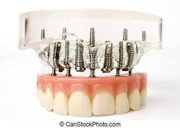 teeth implant model - close up of teeth implant model