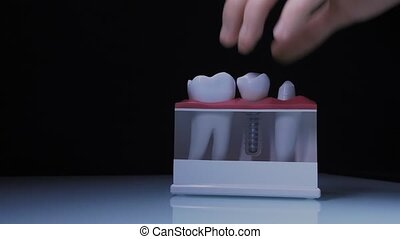 Close-up of the dental implant. The doctor demonstrates the dental implant system.
