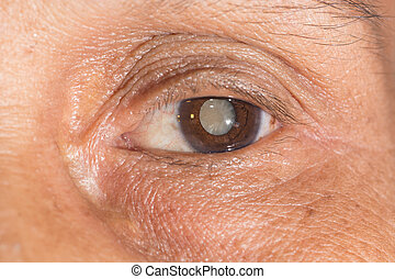 cataract - Close up of the mature cataract during eye ...
