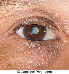 Close up of the mature cataract during eye examination.