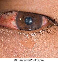 eye exam - Close up of the metallic foreign body on cornea...