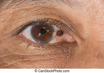 pterygium - close up of the pterygium during eye...